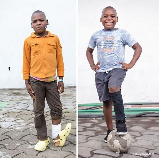 Lucky Boy All Smiles After Undergoing Surgery To Correct His Bent Ankle (Photos)