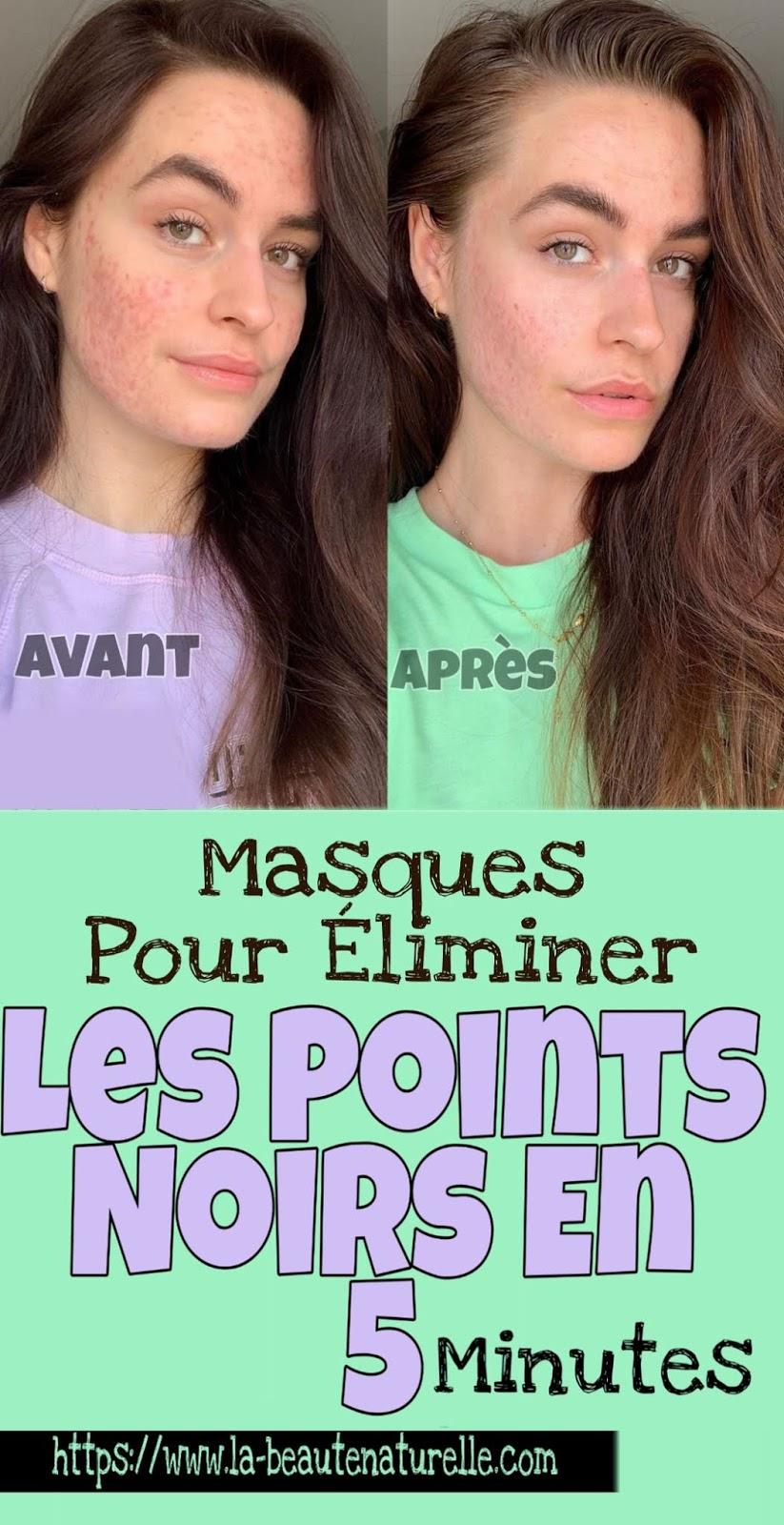 Masques Pour Éliminer Les Points Noirs En 5 Minutes
