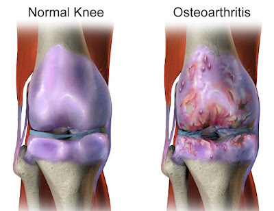 The Roles of Glucosamine and Chondroitin in the Management of Osteoarthritis