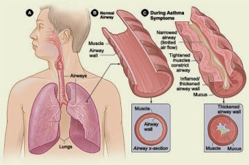 Infection, Smoke Causes Asthma