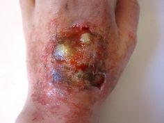 obat luka bernanah