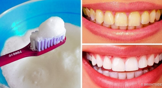 Natural teeth whitening baking soda