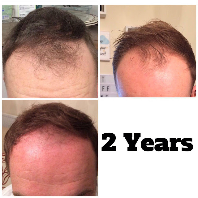male pattern baldness Finasteride and Theradome results