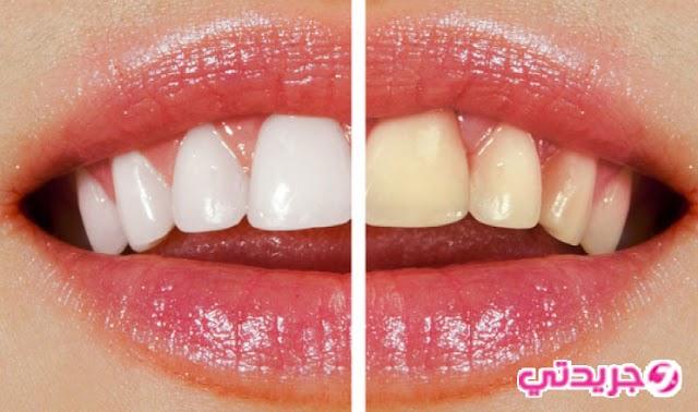 وصفة فعالة وغير مكلفة في تبييض الاسنان