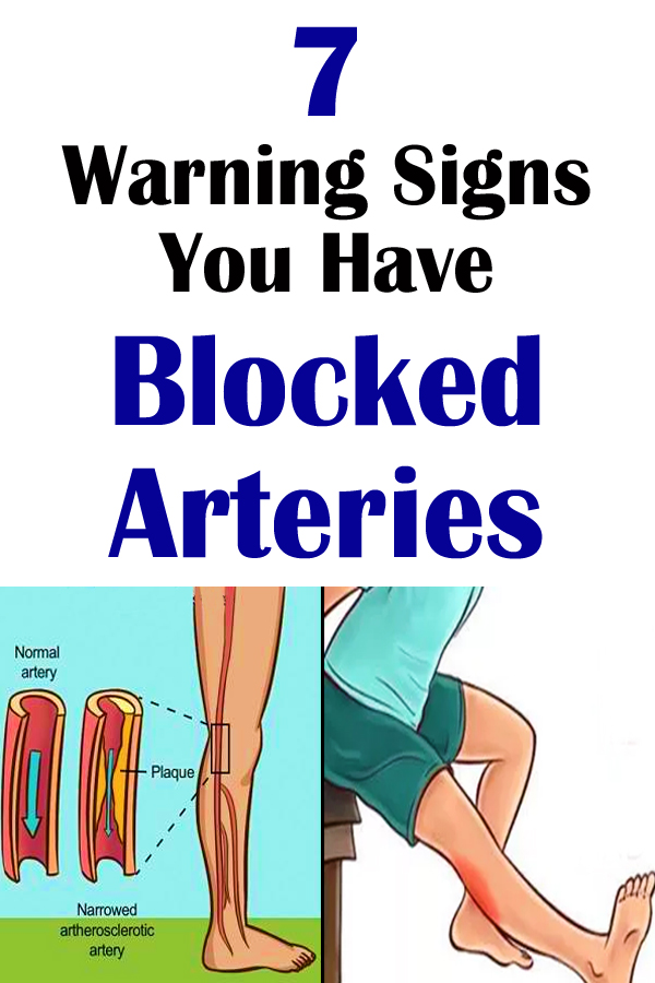 Here Are 7 Warning Signs You Have Blocked Arteries