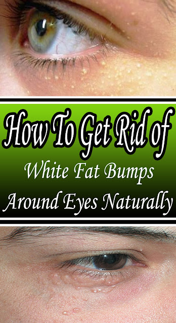 How To Get Rid of White Fat Bumps Around Eyes Naturally