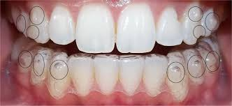 Experience of wearing Invisalign braces in the UK?