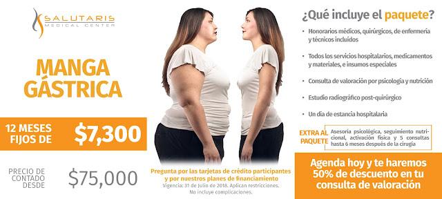 Paquete de Manga Gastrica Sobrepeso Obesidad Guadalajara Mexico