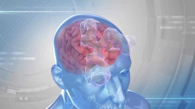 Gli anticorpi nel cervello innescano l'epilessia, suggerisce lo studio