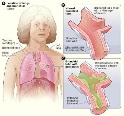 gejala-penyakit-bronkitis