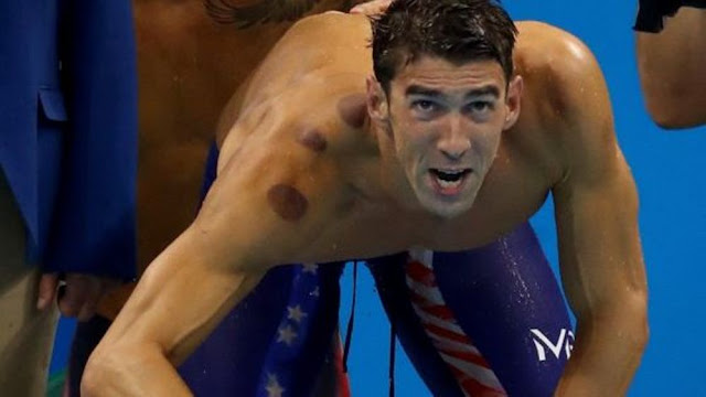 fire-cupping-michael-phelps