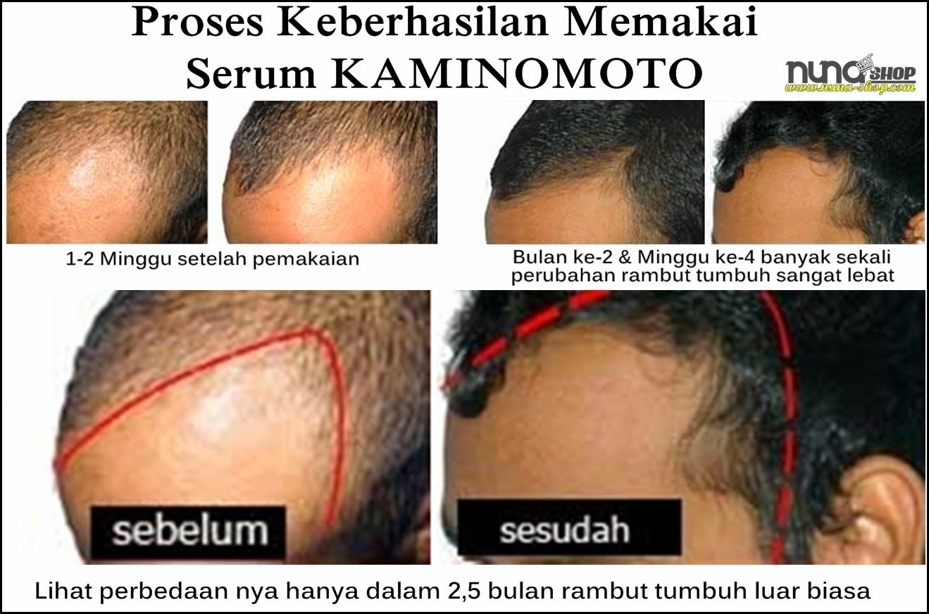 Proses Keberhasilan Obat Penumbuh Rambut Kaminomoto Mengatasi Kebotakan