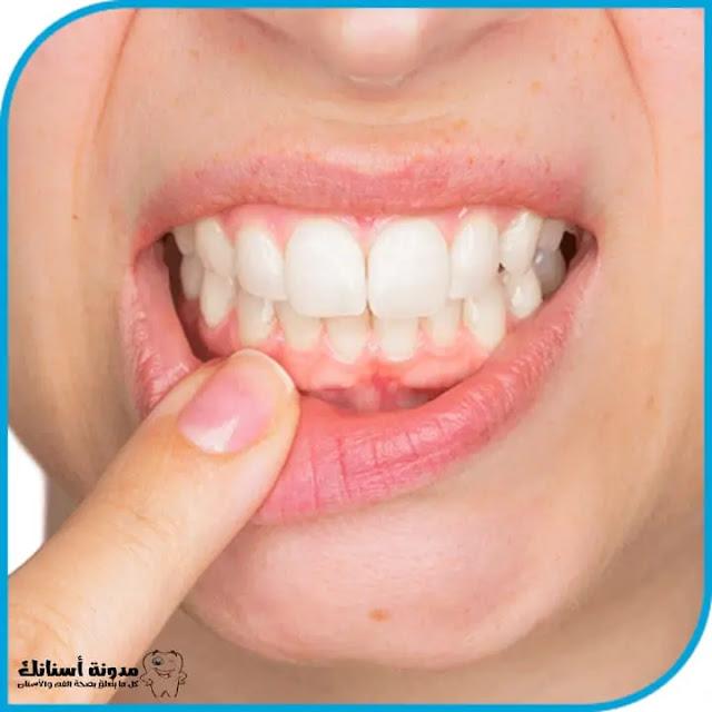 15 شيئ يساهم في تدمير أسنانك.