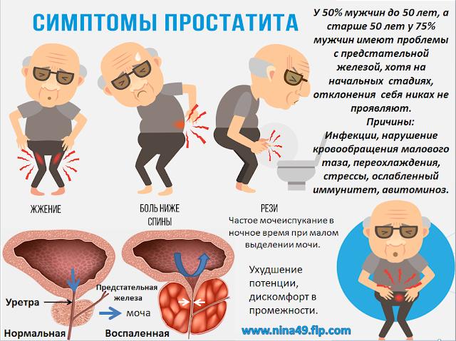 Заболевание хронический простатит