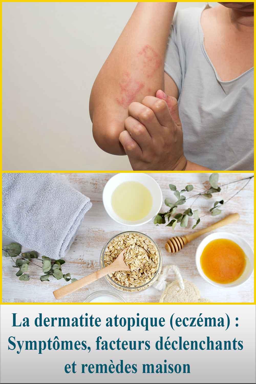 La dermatite atopique (eczéma)