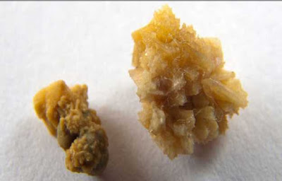 Kidney Stone Treatment, signs, Causes and medication