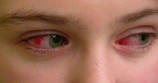 Göz Nezlesi Nedir Neden Olur Belirtileri Kaç Gün Sürer?