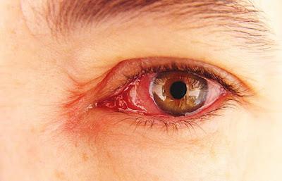Mengatasi Mata Gatal danMerah, Irisan Ketimun, Hindari Menggosok Mata, Menggunakan Daun Sirih, Mengatasi Mata Gatal dan Merah.