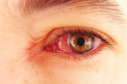 Tips Mengatasi Mata Gatal dan Merah