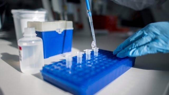 Αύξηση κρουσμάτων κορωνοϊού αναμένει η Περιφέρεια Πελοποννήσου