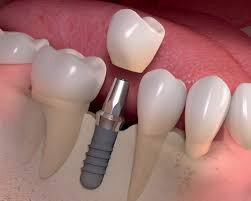 http://jpmaxface.com/maxillo-facial-dental-implants/