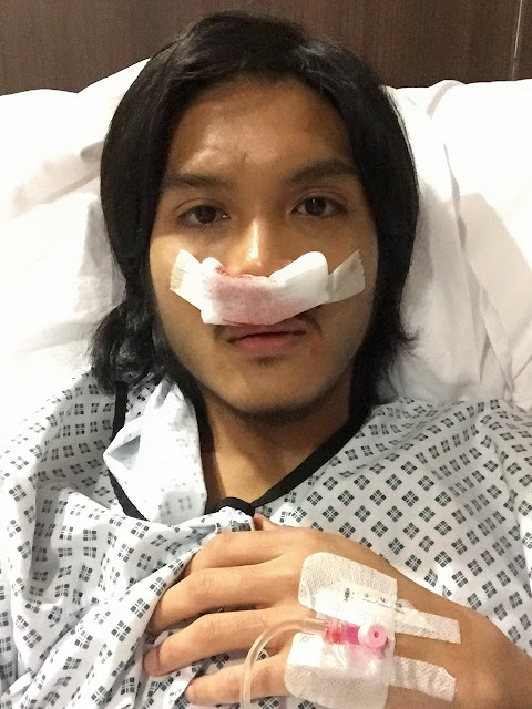"""""""Kawan-Kawan Yang Masih Merokok Tu, Berhentilah..."""" Lelaki ini Kongsi Kisah Hidungnya Terpaksa Dibedah, Biarpun Sudah 5 Tahun Berhenti Merokok"""