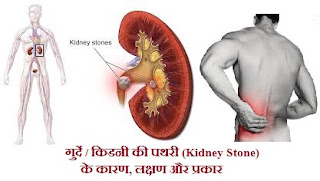kidney-stone-pathri-symptoms-causes-treatment-hindi