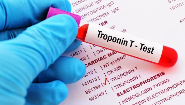 Troponin Test