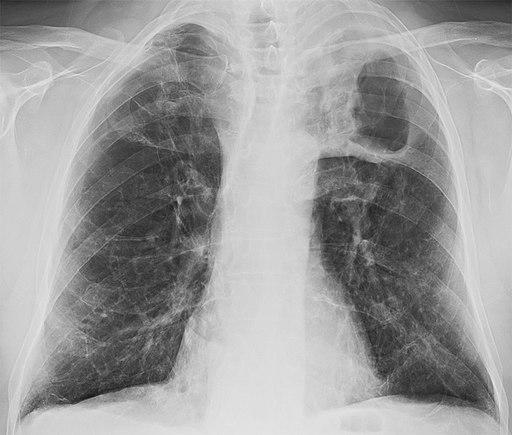 Pengetahuan dan Sikap Penderita TB Paru Di Kelurahan Bintaro
