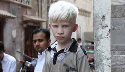 Apa itu Penyakit Albinisme