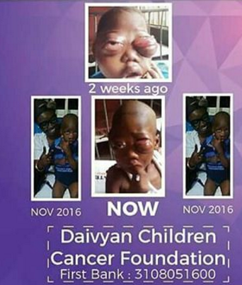nigerian boy eye cancer