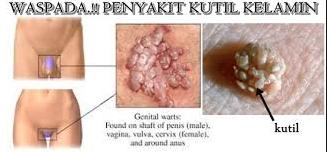 Gambar cara menghilangkan kutil kelamin agar tidak tumbuh lagi