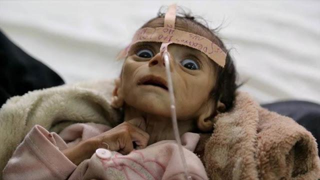 Unicef: Cada 10 minutos muere un niño en Yemen de enfermedades