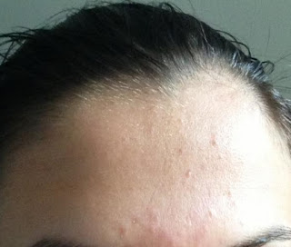 Acne Bumps On Forehead