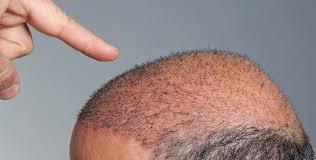 خطورة عملية زراعة الشعر ادى الى وفاة رجل الهندي !!!!!!!