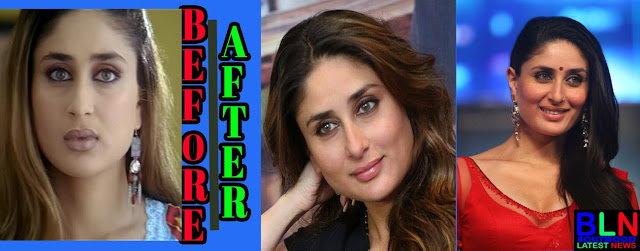 KAREENA KAPOOR Bollywood Actresses Before and After Plastic Surgery