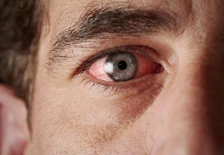 Here are 4 eye damage caused by Diabetes Mellitus