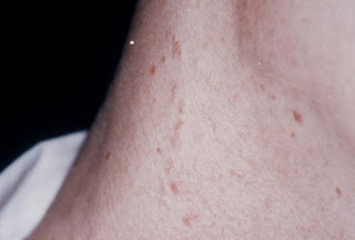 Nevus Comedonicus Images, Symptoms, Causes, Removal, Popping