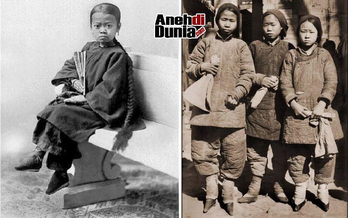 Ikat kaki china Dimulai Sejak Balita