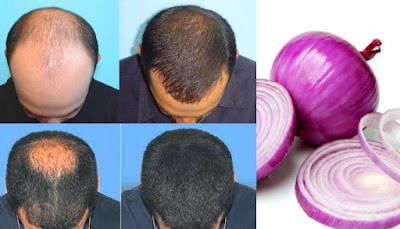 عصير البصل لتطويل الشعر