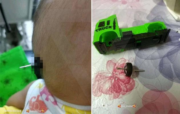 'Separuh nyawaku hampir hilang tengok kejadian ni' - Kepala bayi tertusuk besi tayar kereta mainan