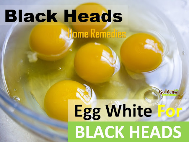 Egg White For Blackheads, How To Get Rid Of Blackheads, Home Remedies For Blackheads, Remove Blackheads Overnight Fast, How To Use Egg White For Blackheads, Is Egg White Good For Blackheads,