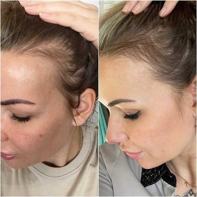 Lotion qui stimule la repousse des cheveux à l'eau de Cologne
