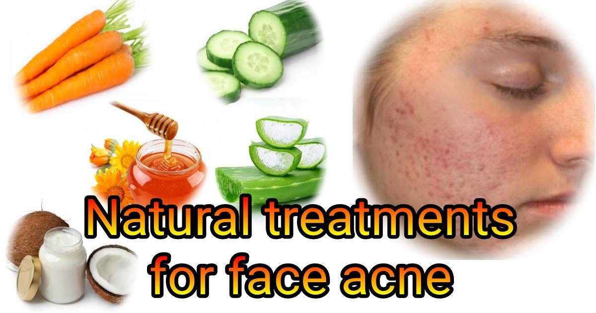 Best Natural Bacne Treatment