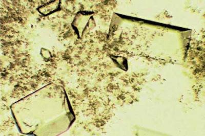 Triple phosphate crystals and amorphous phosphates