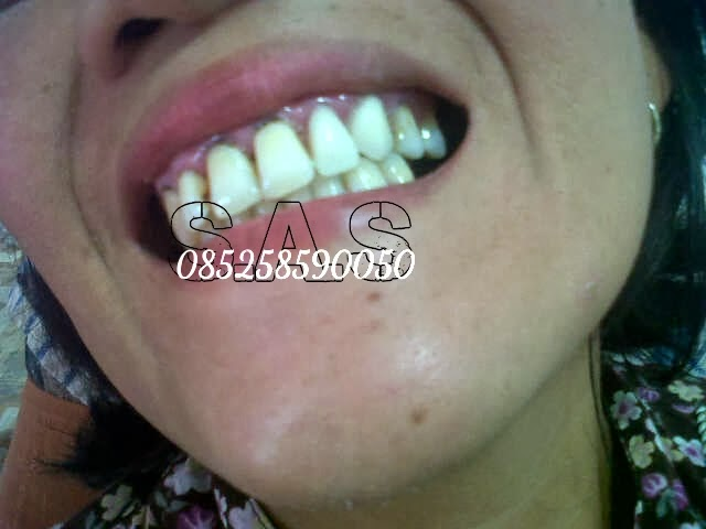 Gambar Pasang Gigi Palsu Lepasan 1 2 3 Versi Ahli Jember di Rebanas ... 478b13ef5d