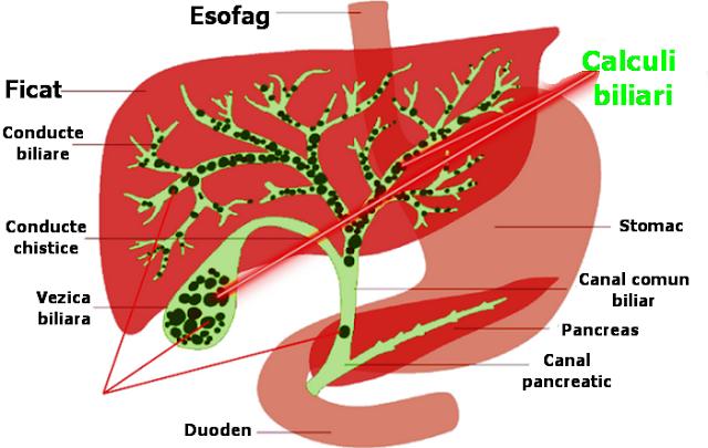 cele mai eficiente si mai sanatoase cure de curatare a ficatului sunt cele pe baza de sucuri de fructe si legume