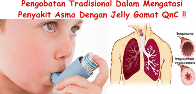 Obat Herbal Tuntaskan Asma