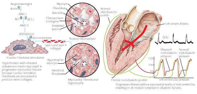 Myocardial Fibrosis. ACE, Angiotensin-converting enzyme; ACE-I, angiotensin-converting enzyme inhibitor; ANG I, angiotensin I; ANG II, angiotensin II.