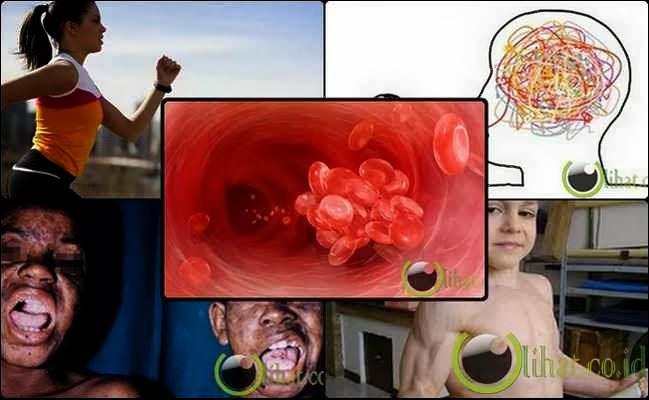 7 Penyakit yang  memiliki manfaat tak terduga bagi Tubuh Penderita